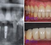 имплантация пример Замещение нескольких зубов