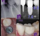 имплантация пример Замещение одного зуба-1