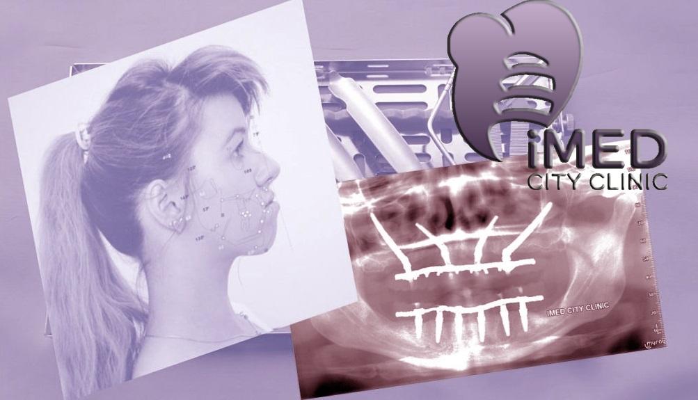 Челюстно-лицевая и ортогнатическая хирургия