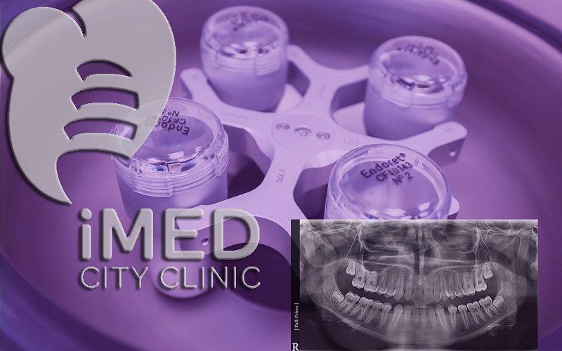 Имплантация и протезирование зубов